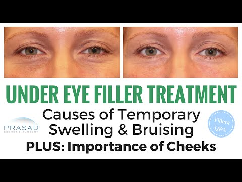Treating Hollow Under Eyes: Temporary Swelling and Bruising, and Importance of Cheek Volume