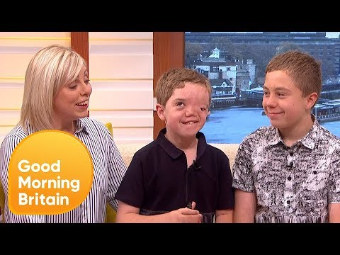 Instagram Has Apologised For Removing Photo Of Boy With Facial Disfigurement | Good Morning Britain