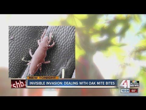 Kansas Citians suffering from Oak Mite bites