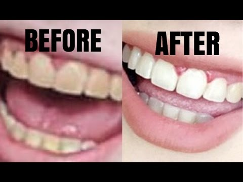WHITENED TEETH AFTER 15 YEARS OF BRACES!