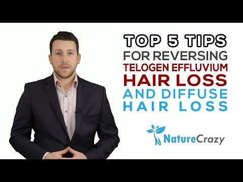 Top 5 Tips for reversing Telogen Effluvium Hair Loss and diffuse hair loss