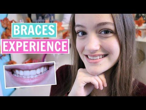 My Braces Experience + Tips & My Advice!