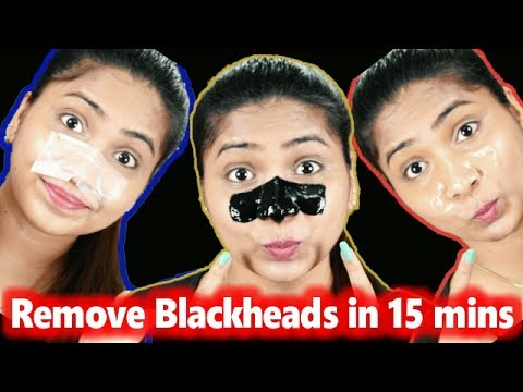 3 DIY Pore Strips to get rid of BLACKHEADS WHITEHEADS Instantly & Naturally at Home /RABIA SKIN CARE