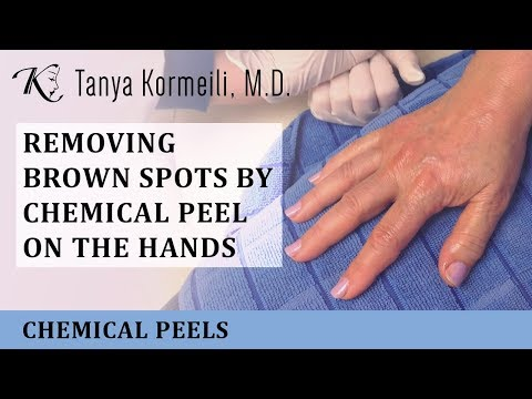 Removing brown spots by Chemical Peel on the Hands