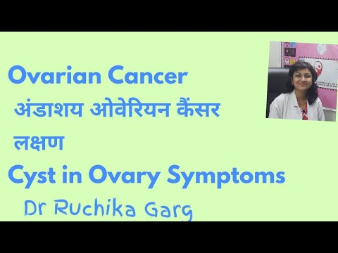 OVARIAN CANCER अंडाशय कैंसर लक्षण Cyst in Ovary Symptoms