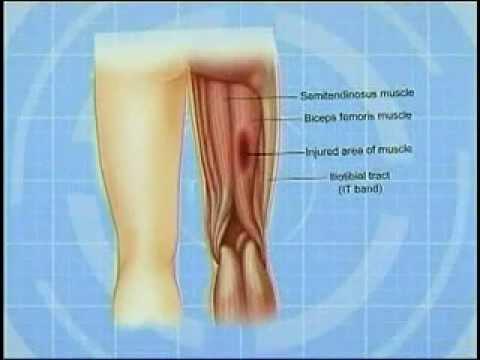 Understanding and treating hamstring injuries