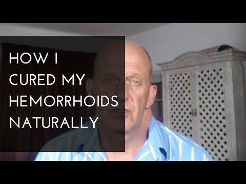 How To Treat Hemorrhoids Naturally At Home (My Experience With Hemorrhoids)
