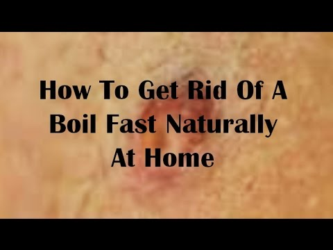 How To Get Rid Of A Boil Fast Naturally At Home