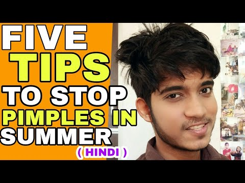 5 Tips To Remove Pimple In Summer | Hindi | Best 5 Ways To Avoid Pimples In Summer