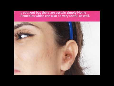 6 Effective Home Remedies to Get Rid of Swimmer's Ear