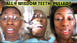 ALL FOUR WISDOM TEETH REMOVED AT ONCE!!  LALAMILAN