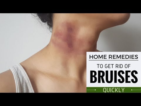 How to Heal Bruises Naturally With Home Remedies |Proven Home Remedies to Get Rid of Bruises Quickly