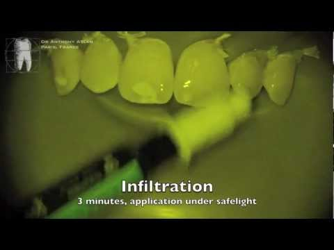 White spots on enamel : treatment by Erosion/Infiltration without any bur.