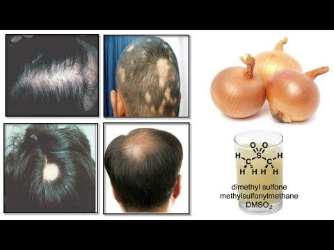 Onion Juice Cure Hair Loss and Promote Hair Regrowth : 100% Natural (In Hindi)