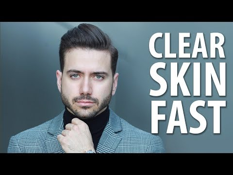 HOW TO GET CLEAR SKIN FAST | Men's Skincare Routine | ALEX COSTA