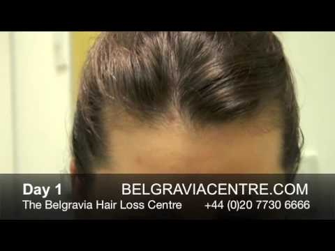 Hair Loss After Pregnancy - Before / After Treatment Comparison