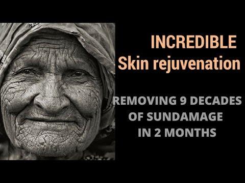Skin Transformation - 9 decades of sun damage