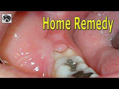 Pericoronitis Home Remedy | Best Pericoronitis Treatment at Home | Wisdom Teeth