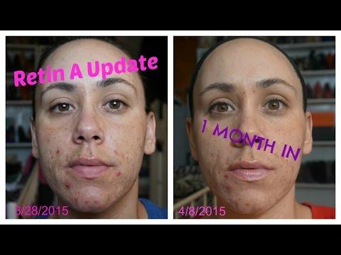 Retin A 1 Month Update