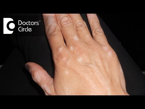 Can white spots in skin be fungal infection? - Dr. Madhu SM