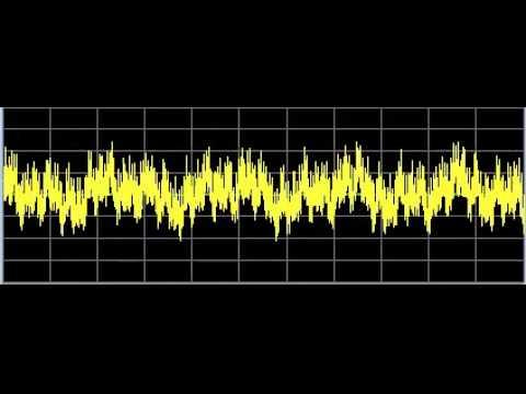 SuperBug - Rife Frequencies