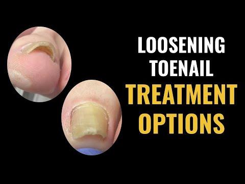 Loosening toenail - Options for treatment