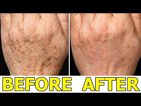 How to Remove Age Spots on Your Hands - 5 Best Ways to Remove Age Spots Naturally