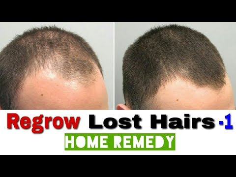 Regrow Lost Hairs| Indian Home Remedies to fix hair fall.