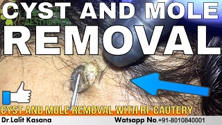 MOLE REMOVAL IN 2 MINUTES BY DR LALIT KASANA - PakVim net HD
