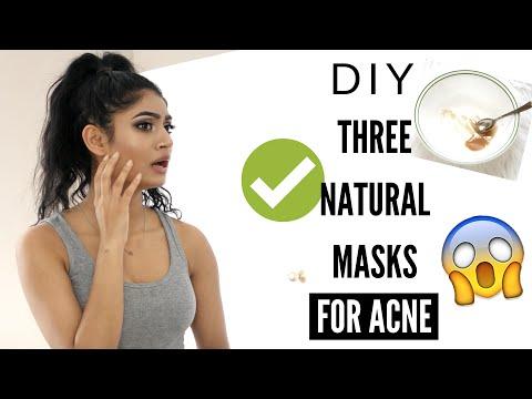 DIY 3 NATURAL Masks to Banish Acne in 2 DAYS | Lavish Krish