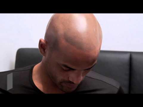 Hair Loss Treatment for Black Men New York - HIS Hair Clinic (Michael's Story)