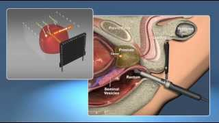 Prostate Procedure - Animation Test