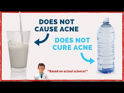 Here's The TRUTH About Acne (Based on Actual Science)