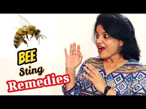 Home Remedies To Treat a Bee Sting | ततैया , मधुमक्खी ,बर आदि काटने पर घरेलू उपचार