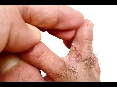 How to Cure Athlete's Foot at Home Fast Naturally?