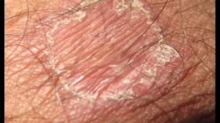 Ring Worm Treatment Showing All Healing Stageswmv
