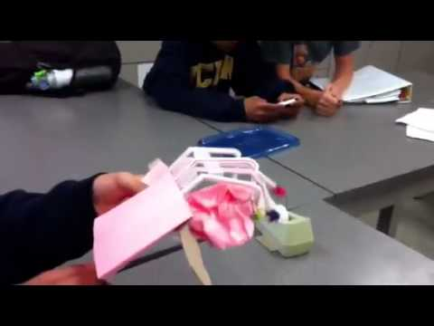 prosthetic hand project