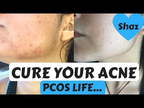 Curing Hormonal Acne | PCOS | 3 Diet Changes + Organic Meat Shopping