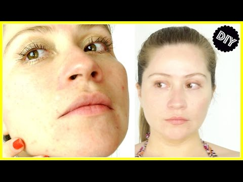 HOW TO GET RID OF ACNE SCARS FAST | DIY