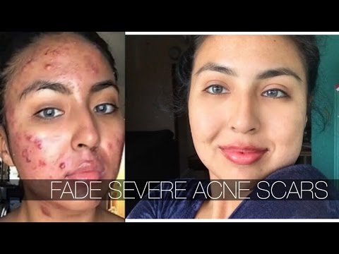 ONE PRODUCT TO FADE SEVERE CYSTIC ACNE SCARS