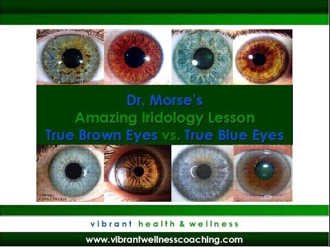 Dr. Morse's Amazing Iridology Lesson:  True Brown Eyes vs. True Blue Eyes