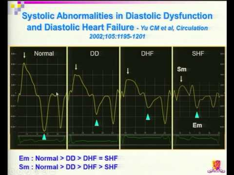 How to Diagnose Heart Failure with Preserved EF? What is the Clinical Challenge?