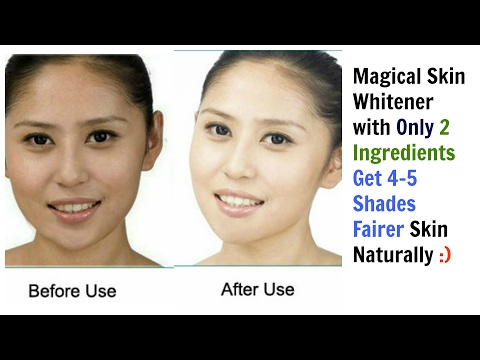Magical Skin Whitener| Only 2 Ingredients | Get 4-5 Shades Fairer Skin Naturally