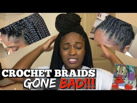 Crochet Braids Gone BAD!!! Infection? Allergic Reaction?