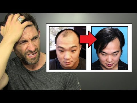 AMAZING Hair Loss Treatment: HAIR TRANSPLANT (Does It Work & How Much Does It Cost?)