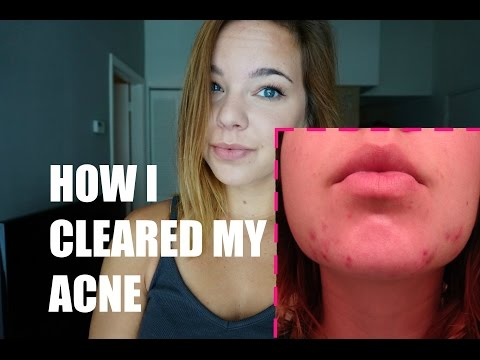 HOW I Cleared My Chin/Cystic ACNE + Tips & How To