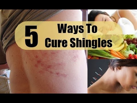 5 Ways to Get Rid of Shingles Fast and Naturalaly.