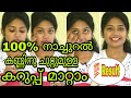 Reduce Dark Circles Naturally at home||Reduce eye sagging ||SimplyMyStyle Unni||Malayalam YouTuber