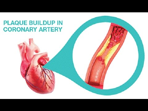 Coronary Arteries Cleanse With Only 3 Ingredients