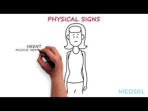 Psychiatry – Anorexia Nervosa: By Megen Vo M.D. & Sara Buckelew M.D.